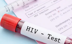 Difference HIV and AIDS