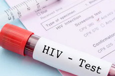 Know the Difference between HIV and AIDS