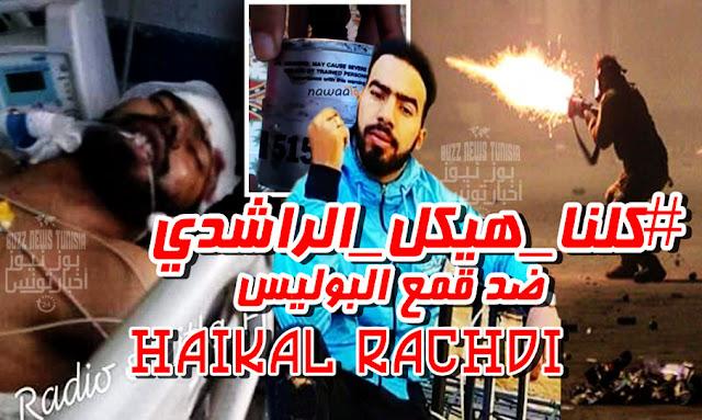 Tunisie - Manifestant Haikal Rachdi blessé à la tête à Sbeitla Kasserine : que s'est-il passé ?