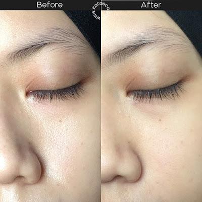hasil pemakaian serum retinol