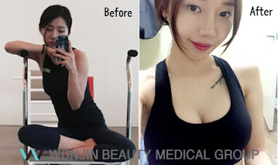 Best Breast Plastic Surgery in Korea: It's Not About The Size Anymore