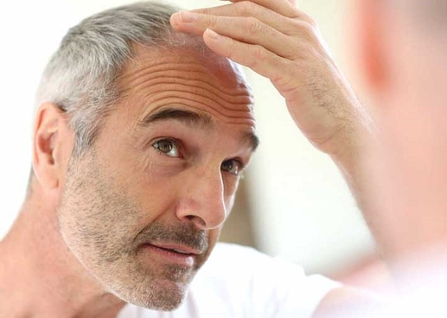 how to deal with baldness in men treatment male hair loss