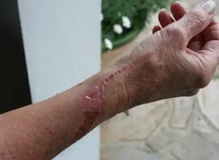 cicatrisation d'une plaie