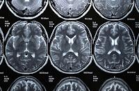 Brain imaging by Ed Maclin