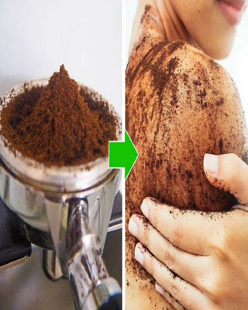 Coffee-Scrub-Home-Remedies-and-Hacks-For-Stretch-Marks-Women-Exfoliating-Shoulder