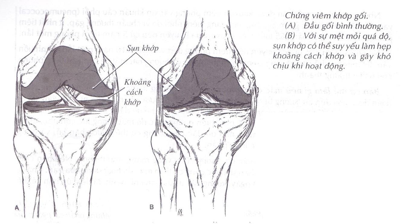 Loãng xương là vấn đề nghiêm trọng ở người già