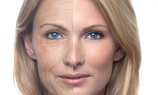 Гликация и внешность: сахарное лицо, часть 4.