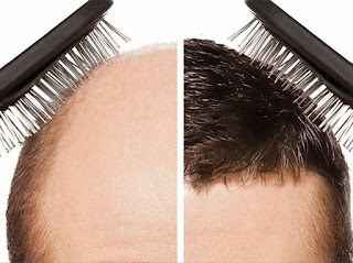أفضل مركز زراعة الشعر في تركيا