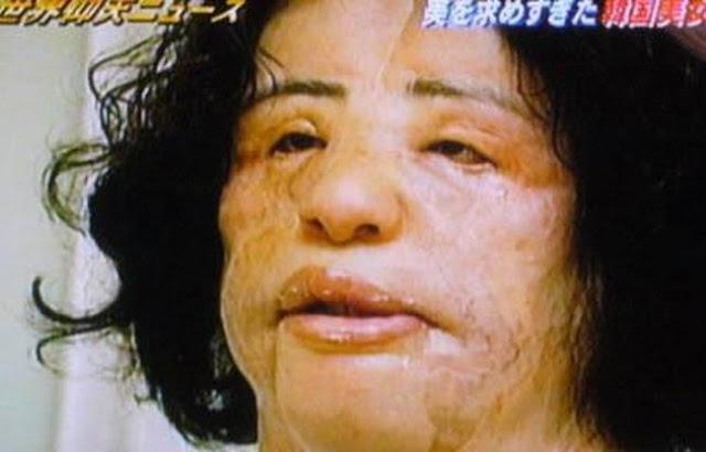 đây là 9 trường hợp phẫu thuật thẩm mỹ khủng khiếp nhất