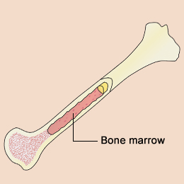 Bone Marrow Cancer