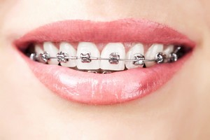 10 Reasons You Should Consider Getting Braces