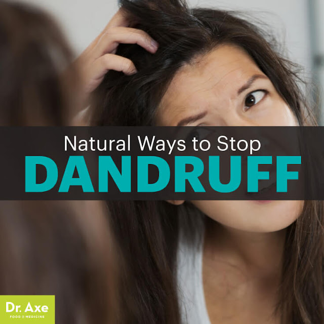 How to Get Rid of Dandruff — 9 Natural Remedies