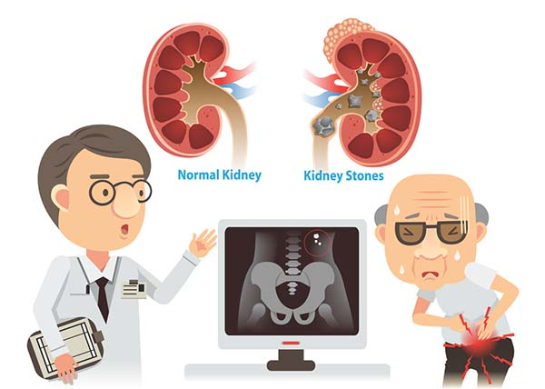 7 Ultimate Kidney Stones Causes Symptoms Get More Info