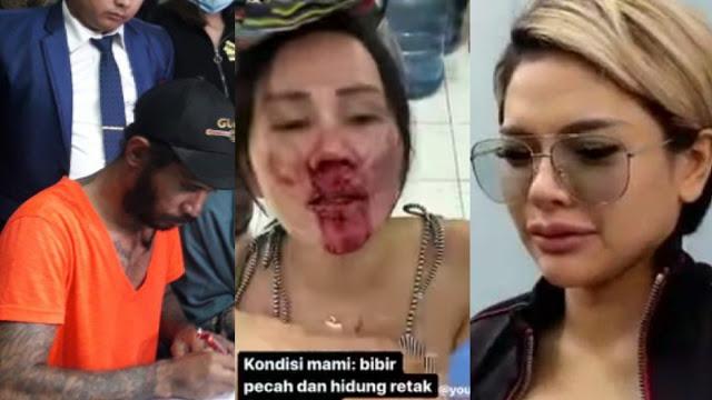 Isa Zega Menangis Dengar Pelaku Pemukulannya Orang Suruhan Nikita Mirzani