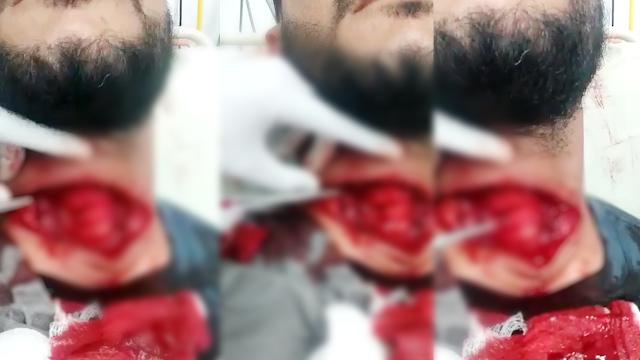 [ Vídeo Chocante ] Em Ji-Paraná homem quase morre após linha de pipa com cerol cortar seu pescoço!