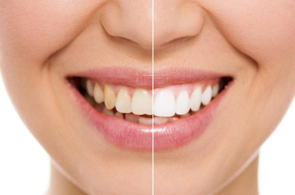 Quanto costa lo sbiancamento dei denti
