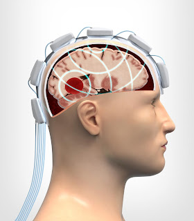 A microwave helmet is placed on the patient's head and the brain tissue is examined with the aid of microwave radiation. ​Illustration: Boid