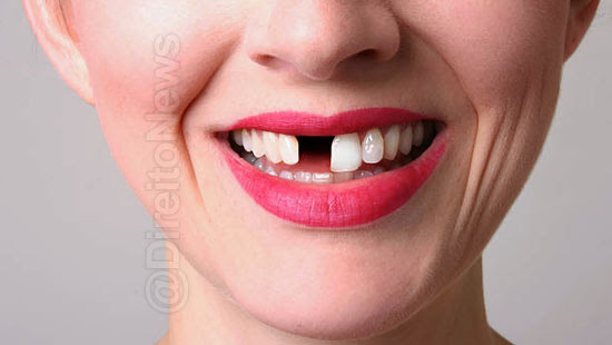 mulher tratamento dentario sorriso vazio direito