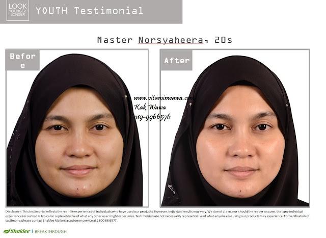 Testimoni Youth Skincare Shaklee dari Malaysia, Testimoni Youth Skincare Shaklee dari orang malaysia,