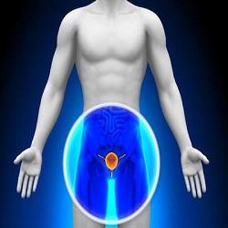 Compreendendo as mudanças na próstata: um guia de saúde para homens