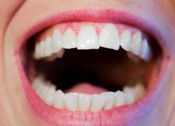 Tips For Better Dental Care