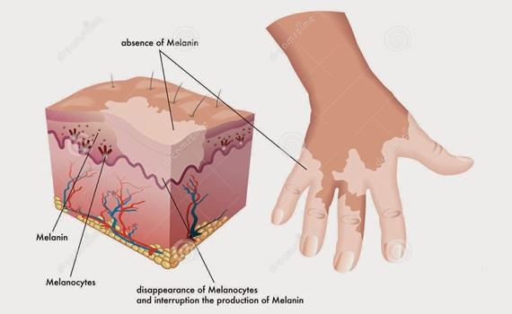 Cara Pengobatan Vitiligo