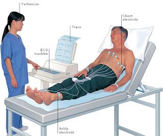 Bagaimana Penyakit Jantung Koroner Didiagnosis?