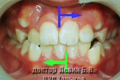 план нормализации средней линии зубов