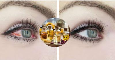 La conjonctivite des yeux, conseils pour pas plus de rougeurs ni de larmoiement!