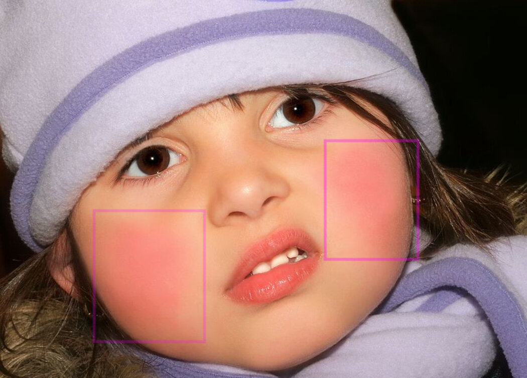 How to Get Gorgeous Pink Cheeks