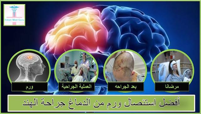 الذي يحتاج لجراحة استئصال ورم من الدماغ؟