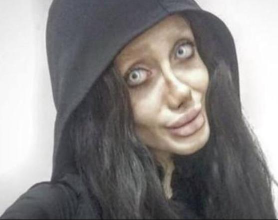 Girl, 19, undergoes 50 surgeries to look like Angelina Jolie but it's an epic fail (horrific photos)