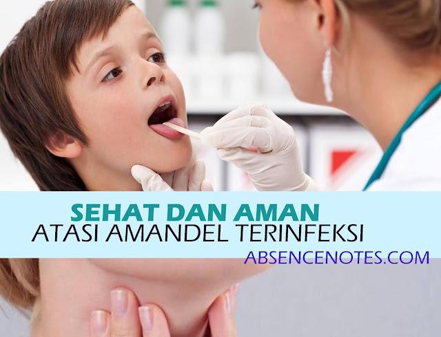 5 Cara sehat dan Aman atasi Amandel terinfeksi