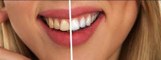 Uso de Lentes de Contato nos dentes despertam para o cuidado com a saúde bucal