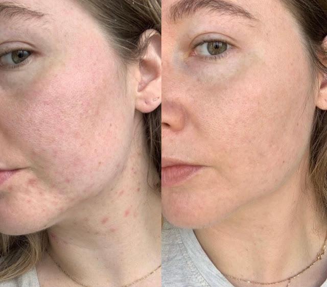 Top 5 huiles essentielles qui luttent contre l'acné efficacement et rapidement