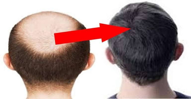 गिरे हुए बाल वापीस कैसे लाए?