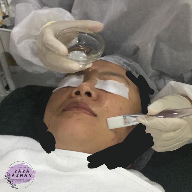 Dermalene Chemical Peel Pigmentation Treatment