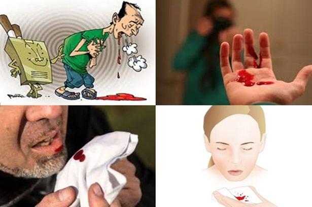 Batuk Berdarah