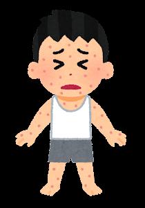 湿疹のイラスト(男の子)