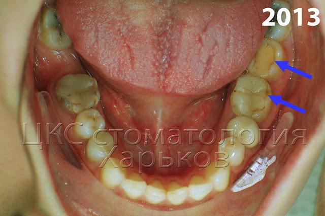 Нарушена связь между пломбой и тканями зуба