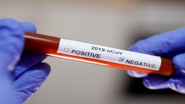 Breaking.....IN 5-MINUTES, COVID-19 CAN BE TESTED NOW- US lab + EL- RUFAI TEST POSITIVE TO CORONA VIRUS