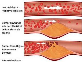 kolesterolün damarlara etkisi