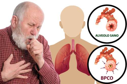 sigaretta elettronica BPCO CoEHAR