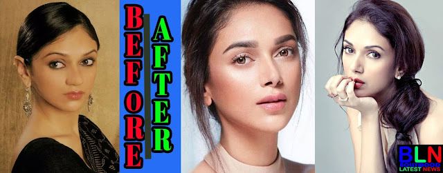 ADITI RAO Bollywood Actresses Before and After Plastic Surgery