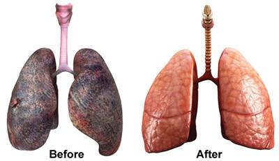 cara-membersihkan-paru-paru-secara-alami
