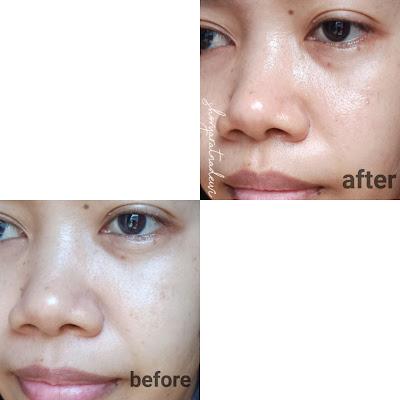 Review Bioxsine Pure & White Face Wash