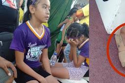 Pakai Sepatu 'Nike' dari Perban, Gadis Ini Menangkan 3 Medali Emas
