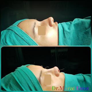 Thick Skin Bulbous Tip Rhinoplasty, Thick Skinned Nose Job, Female Rhinoplasty, Deviated Nose Aesthetic, Ethnic Rhinoplasty
