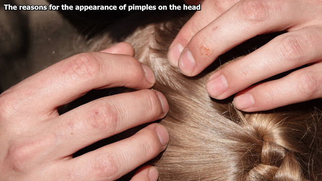 The reasons for the appearance of pimples on the head