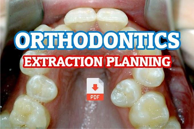 PDF: Extraction Planning in Orthodontics